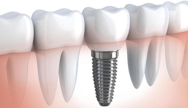 Implant Dentar Brasov